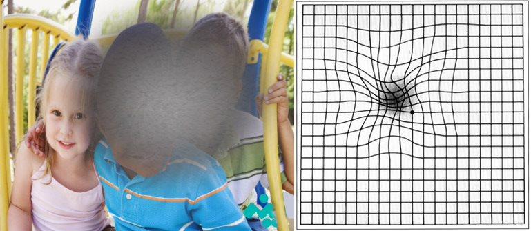 Thoái hóa điểm vàng gây mất thị lực trung tâm, nhìn đường thẳng thành đường cong